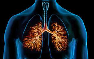 Бронхит при курении: симптомы, лечение, рекомендации