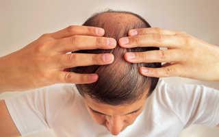 Негативное влияние курения на волосы женщины и мужчины.