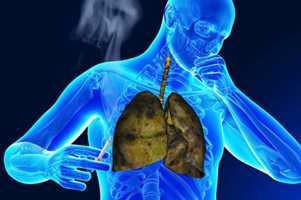 Причины появления кашля у курильщика и последствия