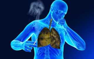 Курение при пневмонии — влияние на организм