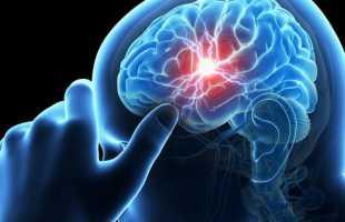 Можно ли курить после инсульта и чем это грозит