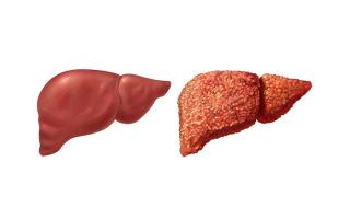 Может ли болеть печень от курения? Симптомы поражения.