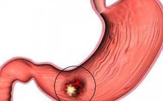 Влияние курения при язве желудка, последствия
