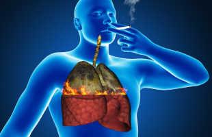 Туберкулез при курении, причины развития болезни