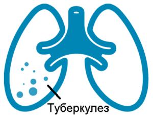 Туберкулез при курении
